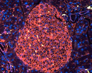 Immunofluorescence image of a paraffin-embedded pancreas section stained with antibodies