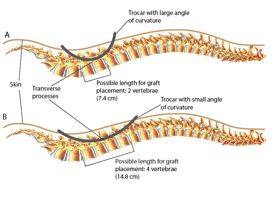 Figure 2. The placement of trocar along the spine.